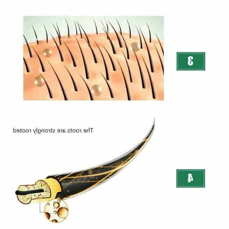 Hair Growth Ginger Oil Hair Growth Faster Grow 2020